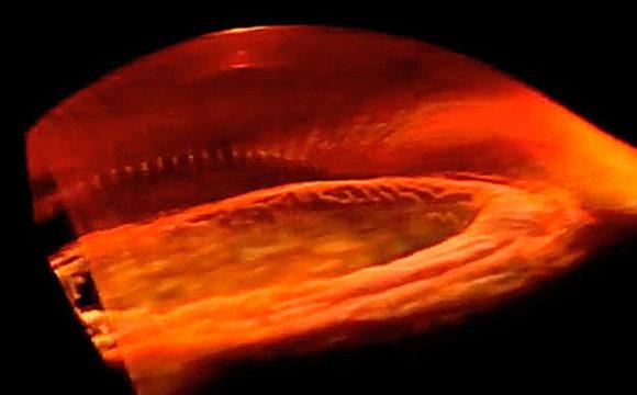 Trasplantan por primera vez una córnea 'fabricada' con células reprogramadas